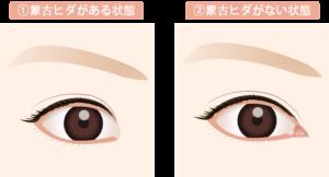moukohida 300x162 - 森七菜の目は一重?奥二重?画像で検証|すっぴん写真やメイク術も紹介